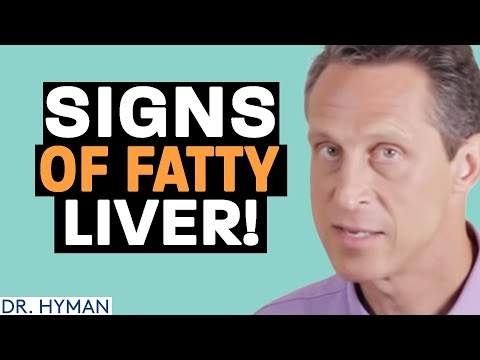 Do You Have a Fatty Liver? 90 Million Americans Do! | HuffPost Life