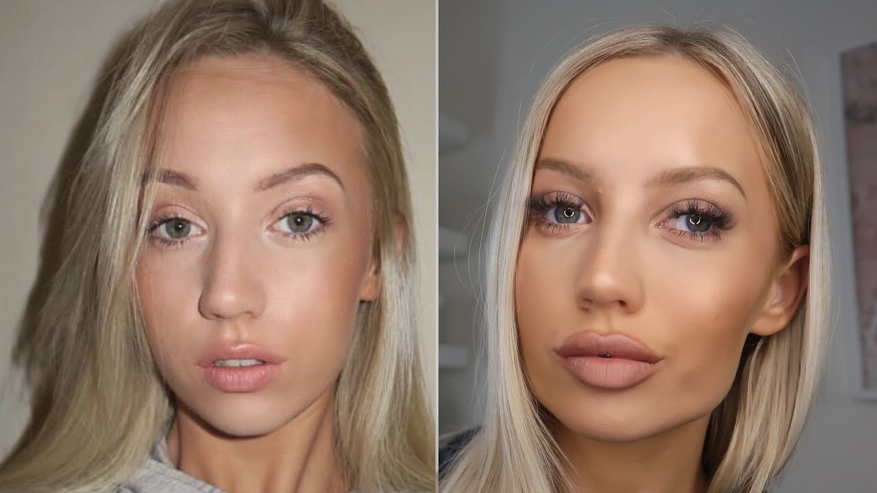 MY ENTIRE FILLER EXPERIENCE - LIPS, BOTOX, JAW + MORE