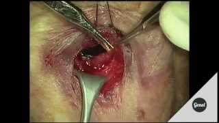 Lower eyelid entropion surgery. Wies technique