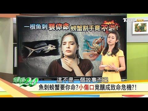 小傷口竟釀致命危機!魚刺卡喉嚨怎麼辦?螃蟹料理不割手小訣竅!健康2.0 (完整版)