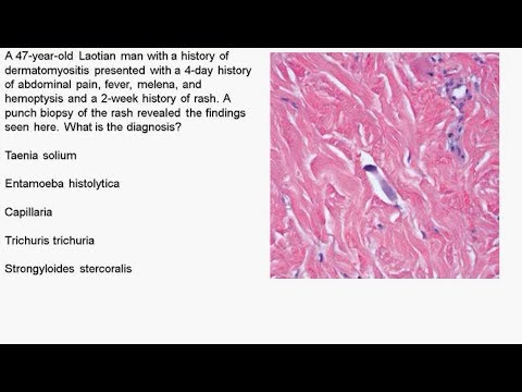 Charité Clinical Journal Club by Fred Luft - 14.06.2017