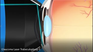 Glaucoma Treatment: Laser Trabeculoplasty Explainer Video