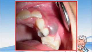 quistes odontogénicos tx