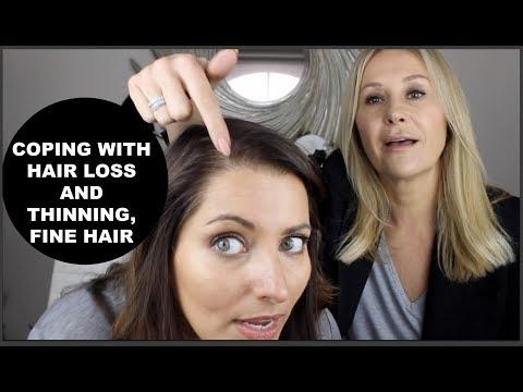 COPING WITH HAIR LOSS AND THINNING HAIR - NADINE BAGGOTT
