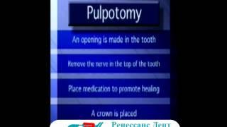 видео лечение пульпита молочных зубов