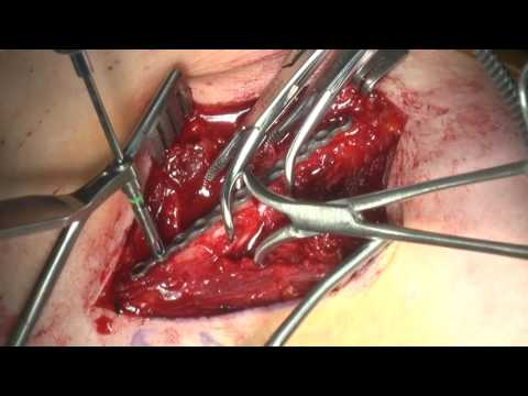 Open Reduction And Internal Fixation Of A Middle Third Clavicle Fracture With A Superior Plate