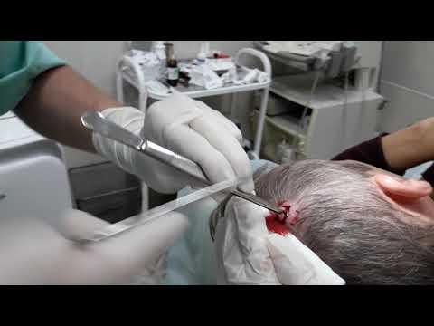 Жировик на голове: причины и лечение
