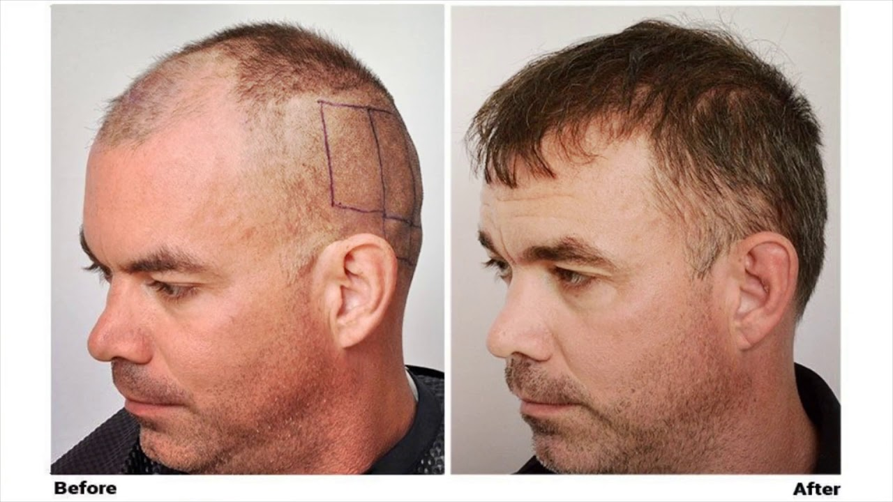 The Forhair Clinic : FUE Hair Transplant