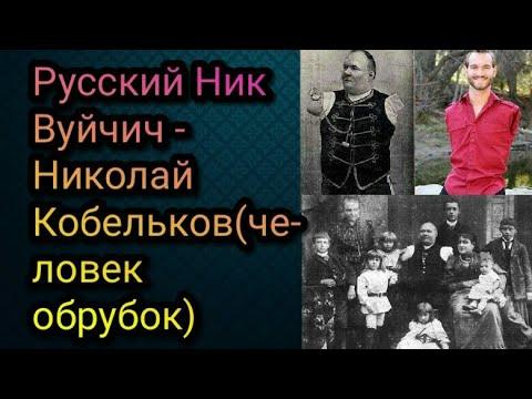 Русский Ник Вуйчич - Николай Кобельков(человек обрубок)