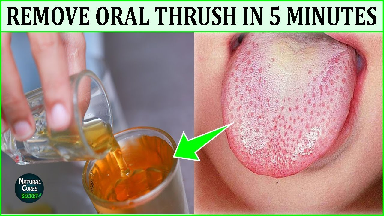 How To Get Rid Of Oral Thrush Naturally