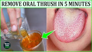 Adults Treatment in for thrush mouth