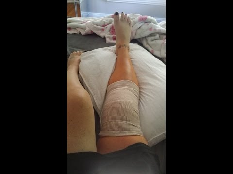 Home From My Torn Meniscus Knee Surgery | LL42863