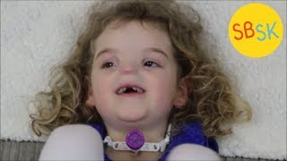The Girl Born Without a Nose (BAM Syndrome)