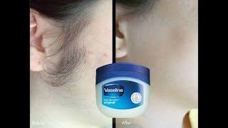 Vaseline 2 मिनट में पूरे शरीर के अनचाहे बाल ऐसे खत्म हो जायेंगे कि दोबारा नहीं आयेंगे/Unwanted Hair