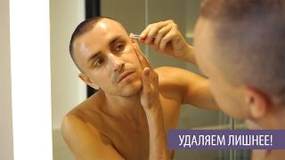 видео Шугаринг обучение Удаление вросших волос Removing Ingrown Hairs Токмаков