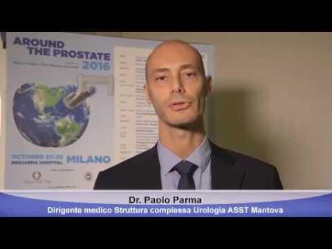 prostata laser al tullio