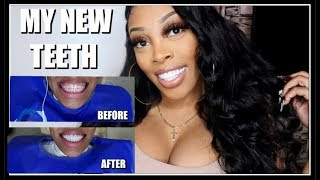I TRAVELED TO CALI COLOMBIA TO GET MY TEETH DONE | Ashley Deshaun
