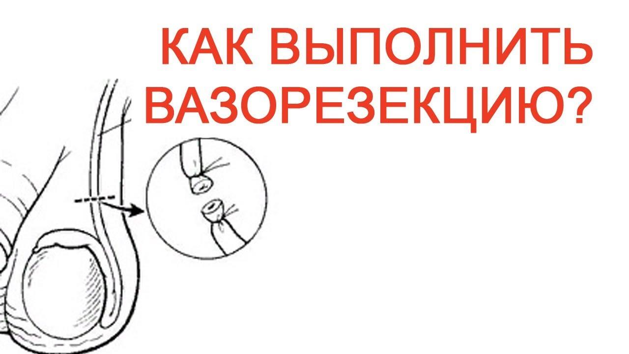 Как выполнить вазорезекцию? / Доктор Черепанов