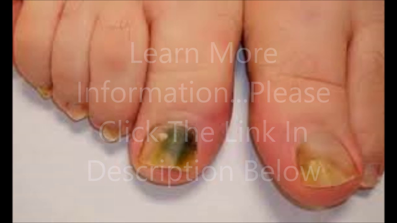 How To Get Rid Of Nail Fungus Caused By Artificial Nails - YouTube