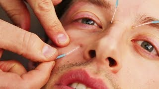 Download The Try Guys Try Acupuncture Mp3 and Videos