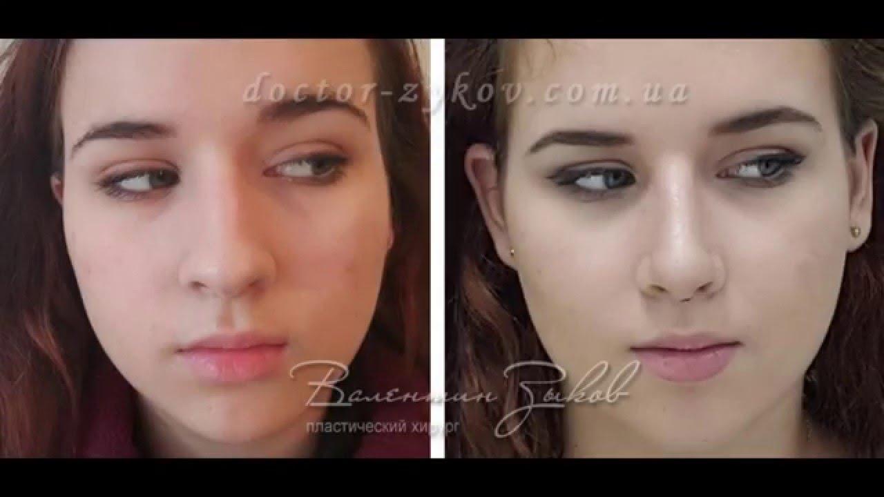 Ринохирургия Ринопластика Пластика носа