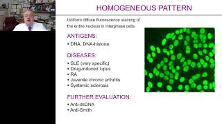 Antinuclear antibody screening - Making an informed decision