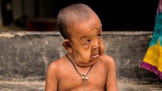 بالفيديو والصور - طفل يعاني من حالة نادرة تجعله بجسم عجوز.. إليكم القصة!