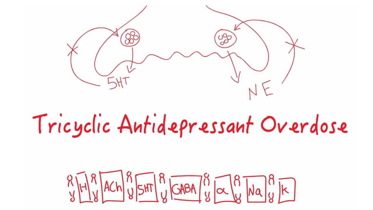 Tricyclic Acid Overdose -- Bavls