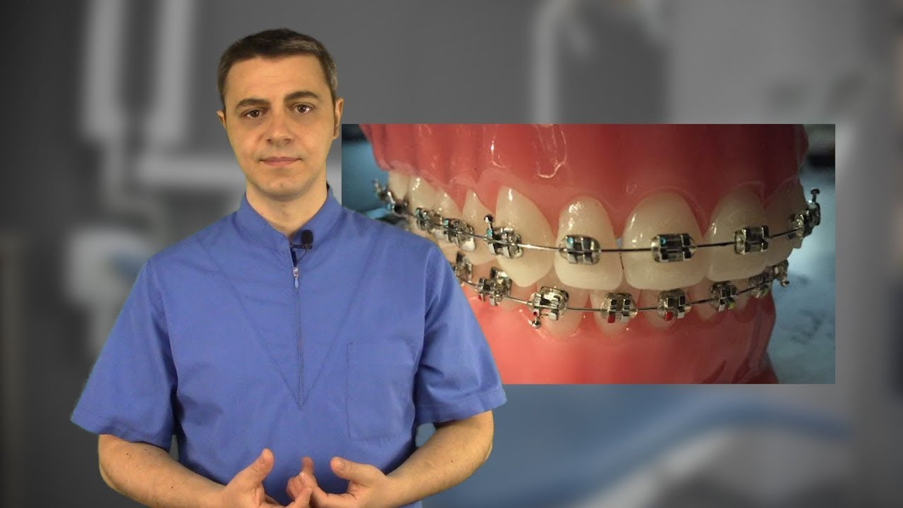 agenesia dei secondi premolari