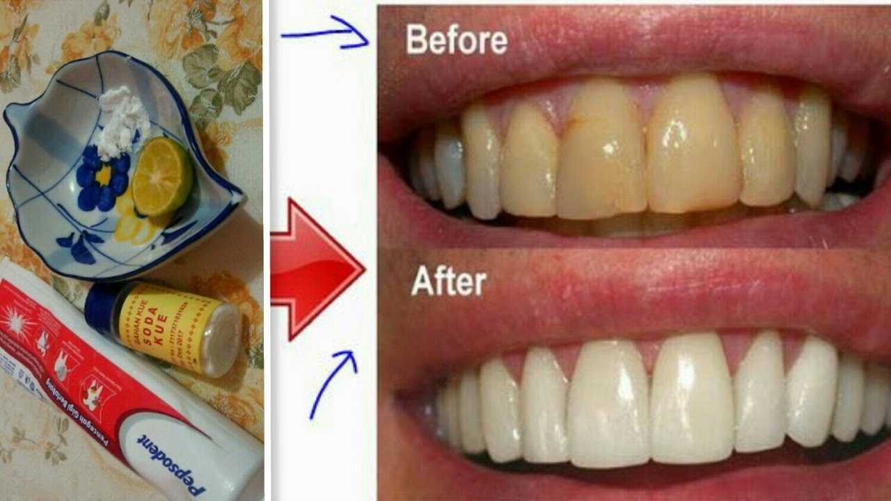 Diy Terbukti Ampuh Cara Memutihkan Gigi Kuning Dalam 2 Minggu