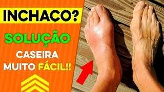 Inchados doença pés e