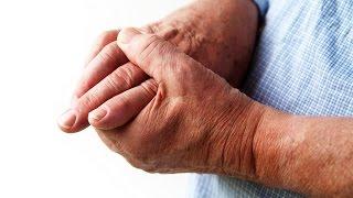 Лечение суставов народными средствами  в домашних условиях! рецепт № 21(Как лечить и как вылечить проблемные суставы. В данное время это один из самых актуальных вопросом для..., 2015-09-16T14:24:01.000Z)
