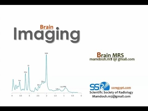 MR Spectroscopy in the Brain - Prof. Dr. Mamdouh Mahhfouz
