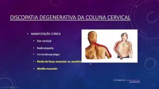 Discopatia Degenerativa da Coluna Cervical