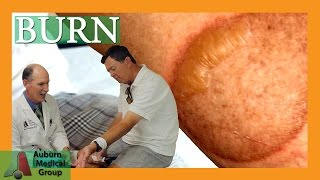 How to Treat a Second Degree Burn | Auburn Medical Group