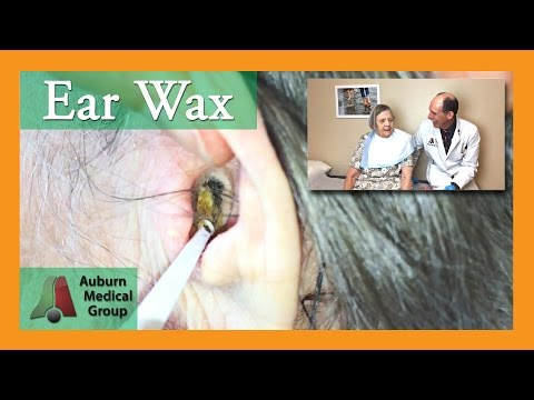 Ear Wax Removal for Hearing Aids | Auburn Medical Group