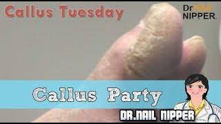 Callus Party #19 - Callus Tuesday