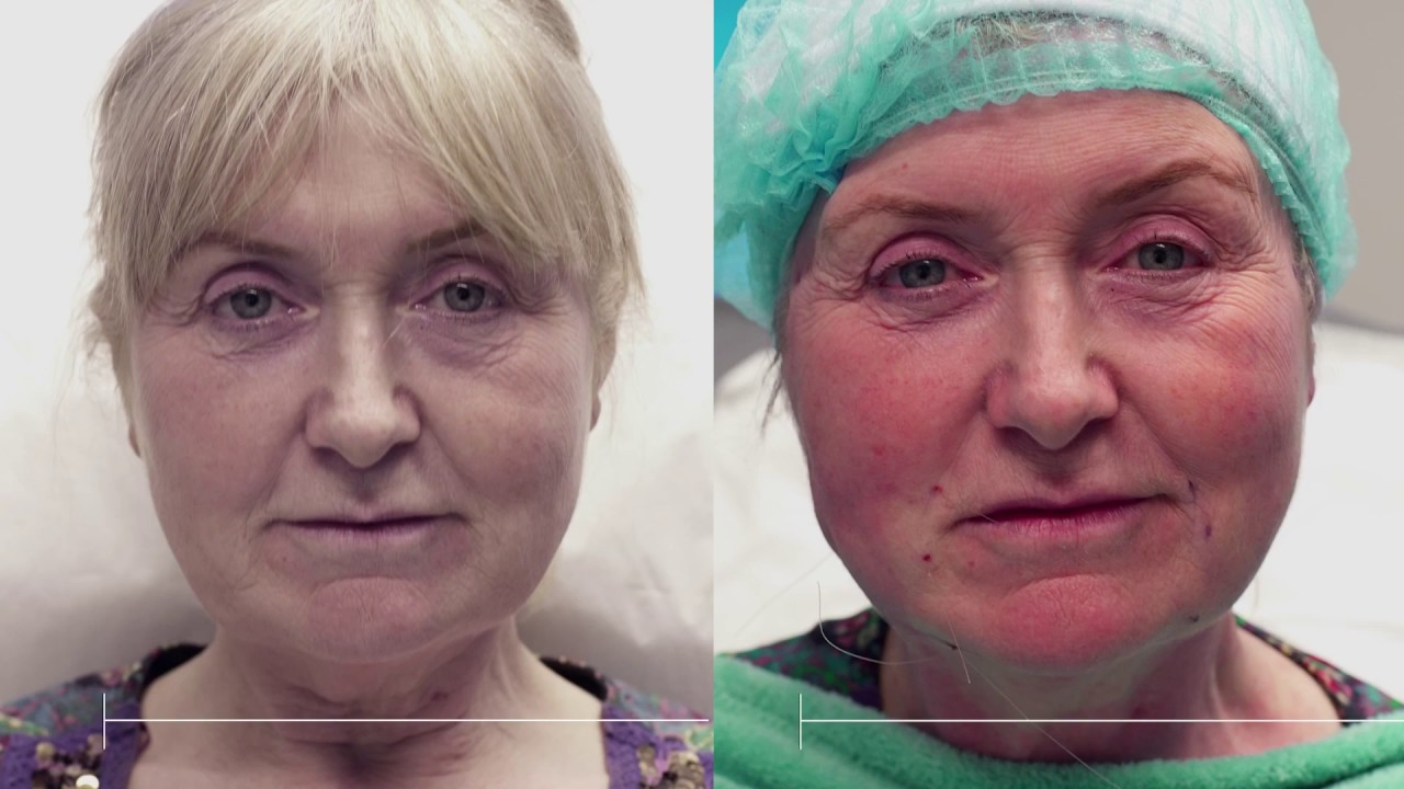 Silhouette Soft | Non-surgical alternative to a Facelift