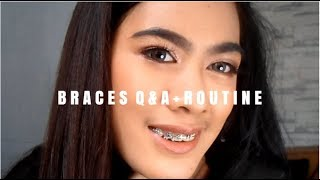 BRACES Q&A | EXPERIENCE? STRUGGLES? + ROUTINE