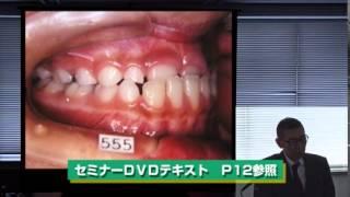 リンガルアーチの臨床応用セミナーサンプル動画/鋏状咬合の改善