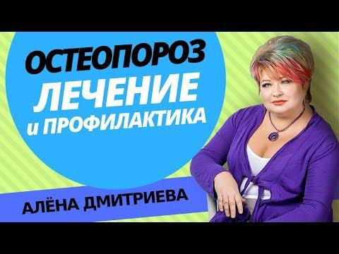 Алена Дмитриева. Остеопороз лечение. Лечение остеопороза