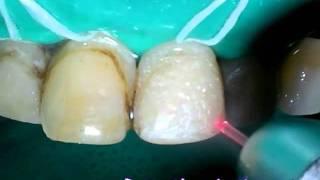 Стоматологический лазер - препарирование под винир(Подробнее о стоматологических лазерах смотрите на сайте STOMLASER.RU., 2011-12-23T06:09:53.000Z)