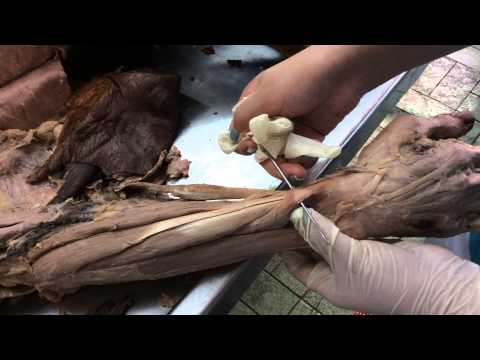 Dissection Axilla and Arm