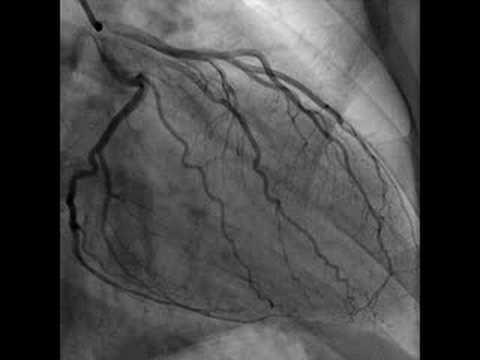 Cardiac Catheterization Heart Video Youtube