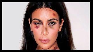 Kim Kardashian aggredita in albergo- la vera storia della star dei social