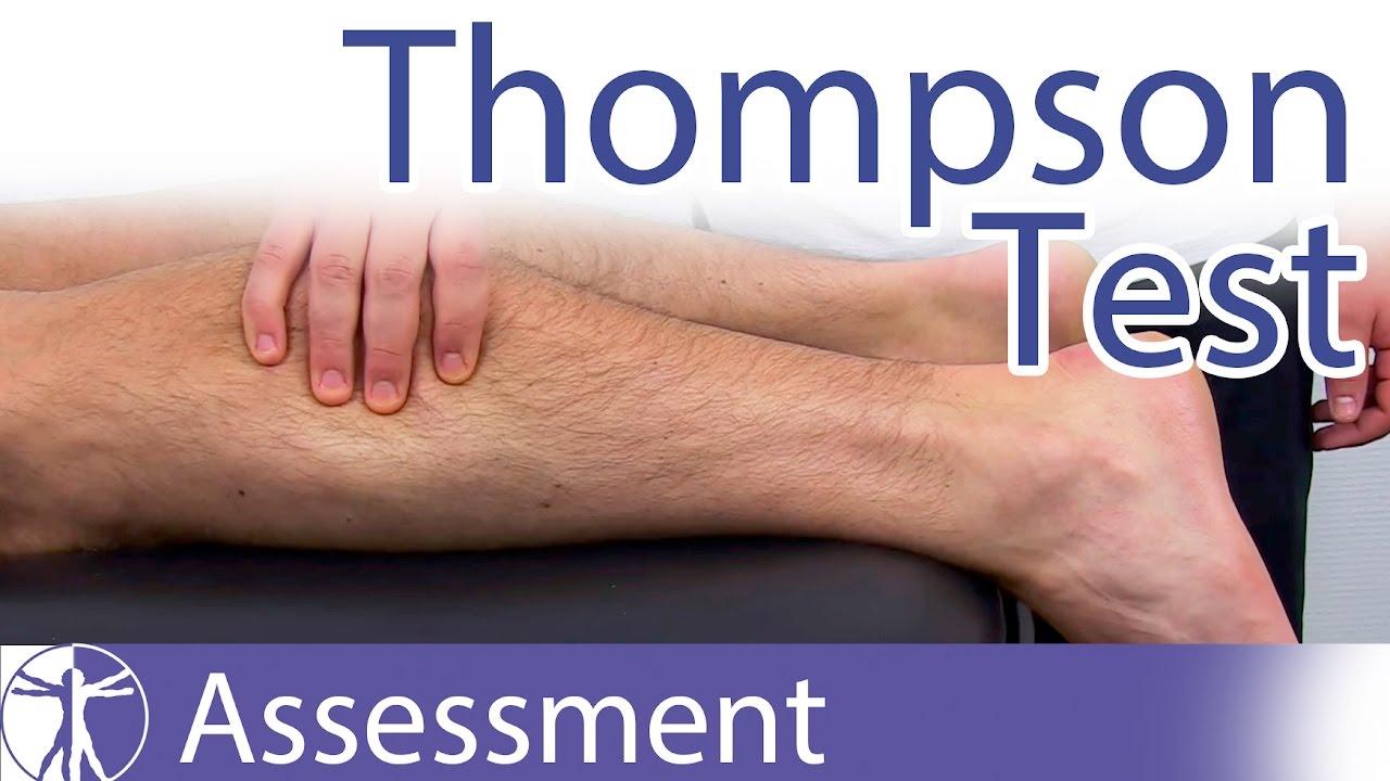 Thompson Testachilles Tendon Rupturetear Youtube