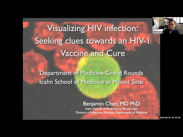 Visualizing HIV Infection: Seeking Clues Towards an HIV-1 Vaccine and Cure