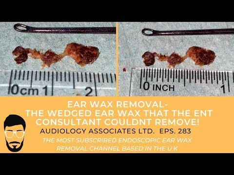 EAR WAX REMOVAL - THE WEDGED EAR WAX THE ENT CONSULTANT COULDN'T REMOVE - EP 283