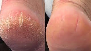 видео Как быстро и эффективно избавиться от трещин на пятках: чем лечить?
