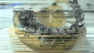 Copia di protesi fissa metallo ceramica